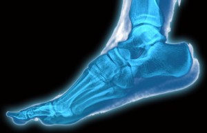 Exeter Foot & Ankle Clinic - foot treatments using x-ray